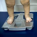 Piernas de niños obesos