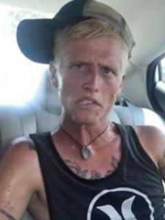 Madre publica fotos del devastador cambio que sufrió su hijo por la heroína