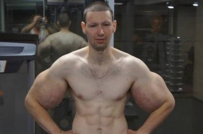 Kirill Tereshin, conocido como 'Popeye' ruso.