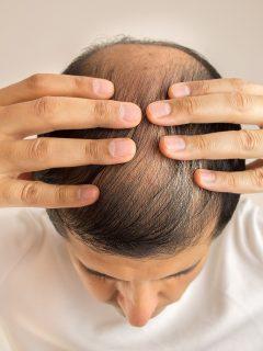 ¿Se le está cayendo el cabello? Trabajar más de la cuenta lo podría dejar calvo