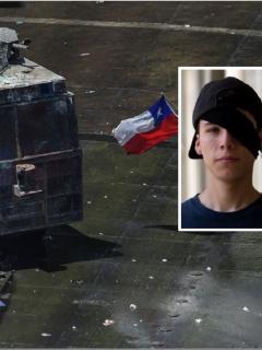 Hasta ciegos han quedado algunos heridos por artefactos lanzados por policías, en Chile
