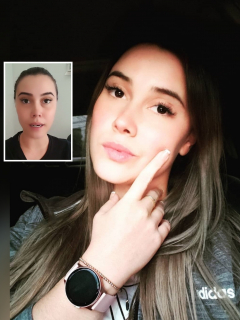 """""""Me quedé mueca"""": Manuela Gómez habla sobre riesgos de hacerse diseño de sonrisa"""