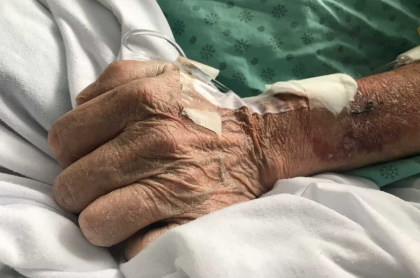 Anciano en hospital.
