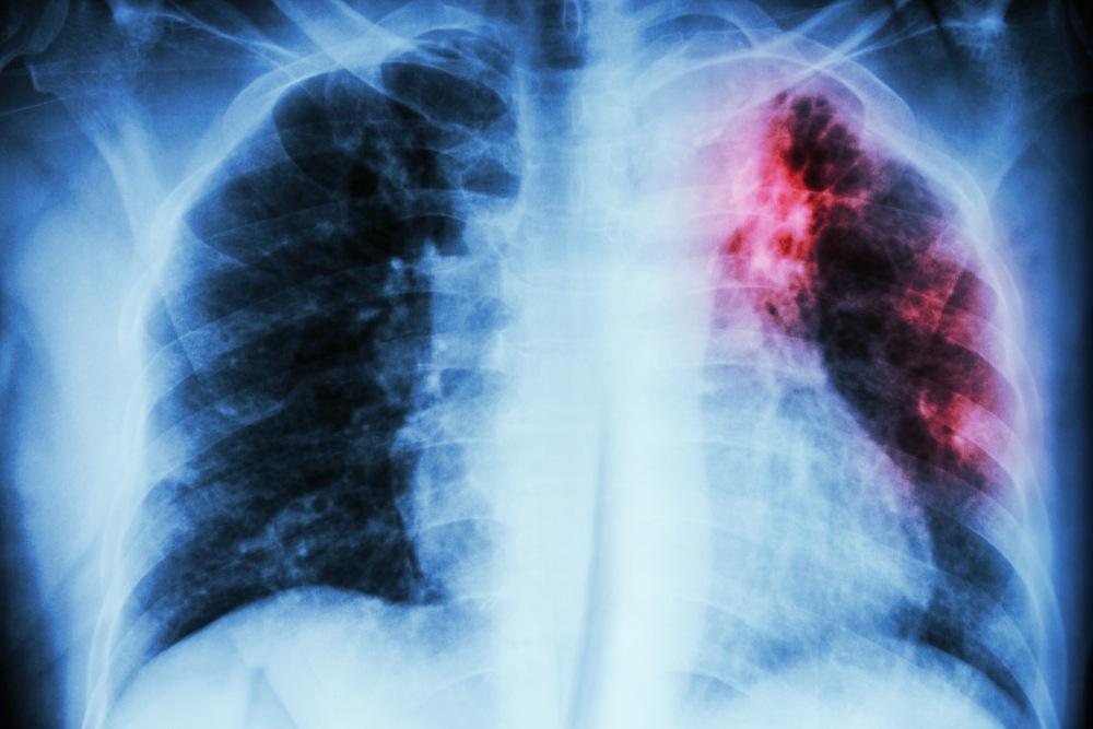 La fibrosis pulmonar es una de las secuelas graves que experimentan los sobrevivientes de coronavirus.