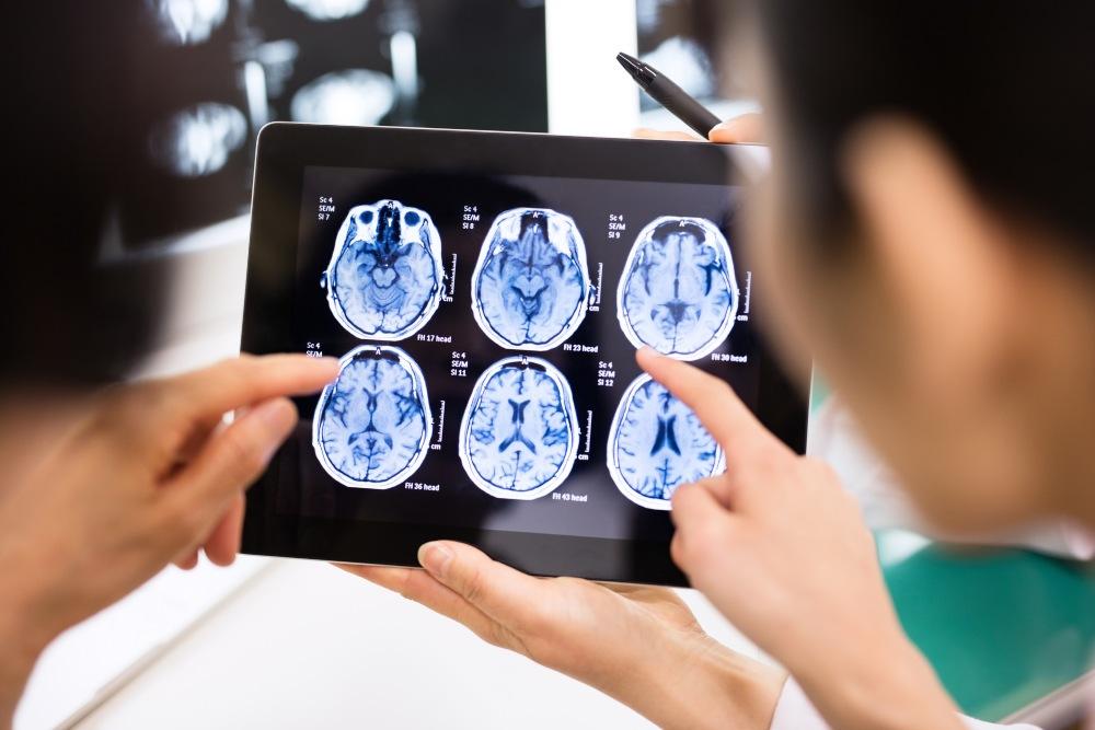 Daños en el cerebro es una de las secuelas graves que experimentan los sobrevivientes de coronavirus.