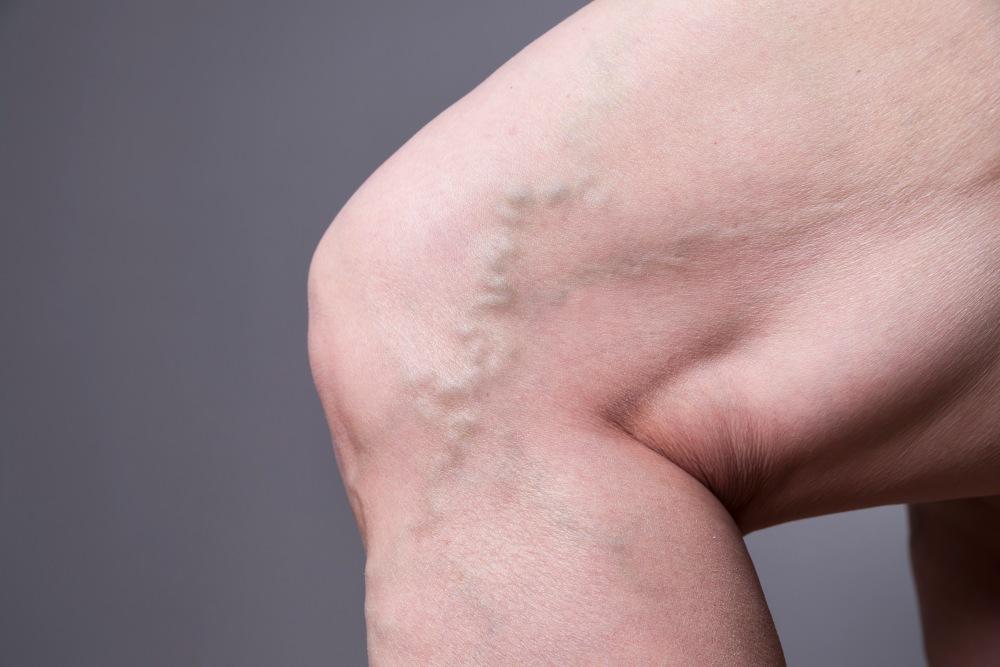 El deterioro del sistema vascular es una de las secuelas graves que experimentan los sobrevivientes de coronavirus.