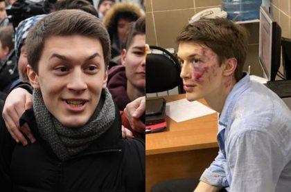 Yegor Zhukov, agredido brutalmente afuera de su casa en Moscú