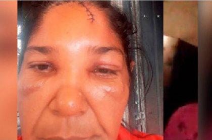 Mujer que denuncia caso de abuso de autoridad en Montería.