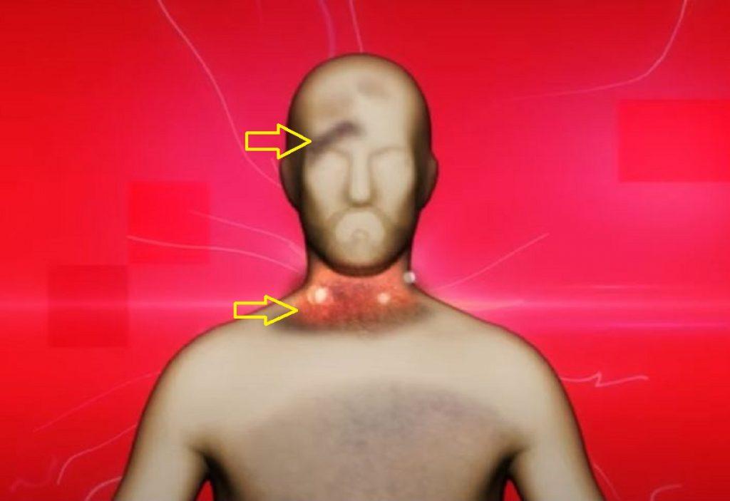Imagen de las lesiones a Javier Ordóñez-Semana Tv
