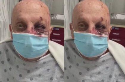 Eduardo Fernández, de 74 años, recibió una brutal golpiza en pleno metro de Miami.