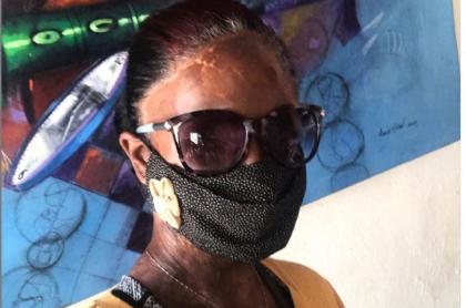 Esther Jiménez, quien sufrió un fuerte ataque de ácido en 2011, posando en su cuenta de Instagram.