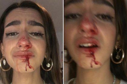 Eva Castt, una joven transexual de 19 años, recibió una brutal golpiza en plena calle de Barcelona, España