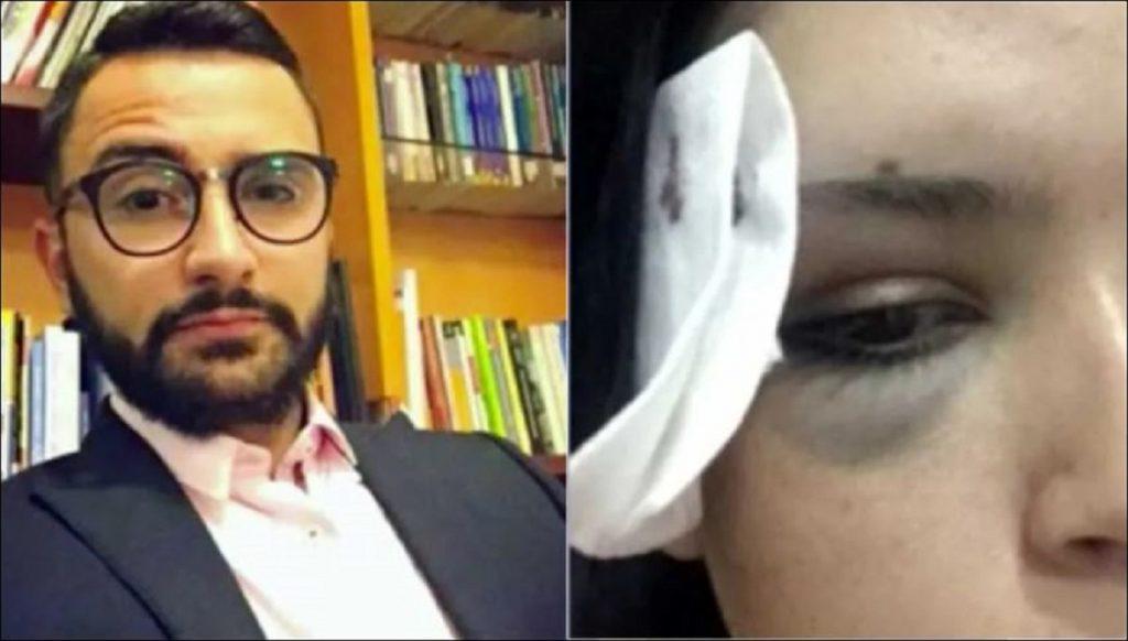María Camila Riaño denuncia que su novio, Camilo Villarreal, la golpeó por negarse a tener relaciones sexuales. Tomada de CM& Noticias