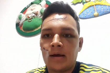 Felipe Roa, hombre al que le cogieron más de 100 puntos, tras sufrir agresión con pico botella, en Fusagasugá