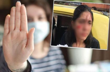 Diana Carreño, víctima de agresión, denunció que un hombre de unos 70 años le estalló una botella en su rostro