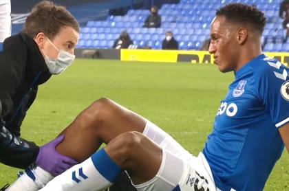 Yerry Mina, lesionado con el Everton; ¿será baja de Selección Colombia?. Momento de la molestia.