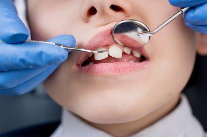 Imagen que ilustra el caso de un niño que fue al odontólogo y terminó en UCI.