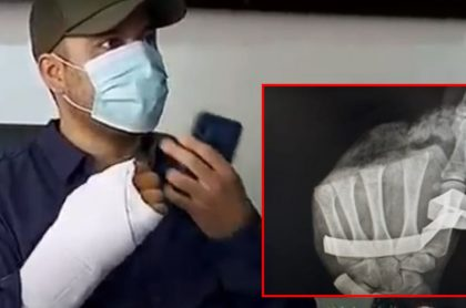 Policía de Bogotá al que le implantaron pedazo de mano que le habían amputado con un machete