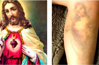 Joven se golpea y le sale morado con forma de Sagrado Corazón