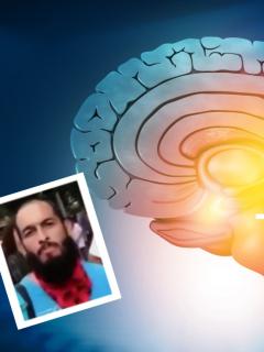 Fotos de cerebro y de Lucas Villa, a propósito de qué es muerte cerebral, diagnóstico que darían al joven herido en paro en Pereira.