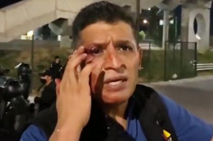 Golpean a periodista en clásico Monterrey vs. Tigres de México; lo robaron. Imagen de Alejandro Aguirre.